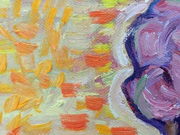 tumour detail 3 600x450